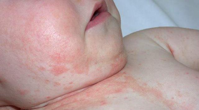 Что такое дерматит и как его лечить у детей?