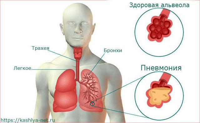 Бывает ли при пневмонии кашель