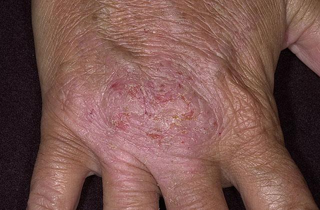 Дерматит и аллергия это одно и тоже