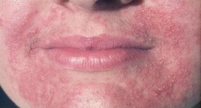 Схема лечения периорального дерматита у взрослых