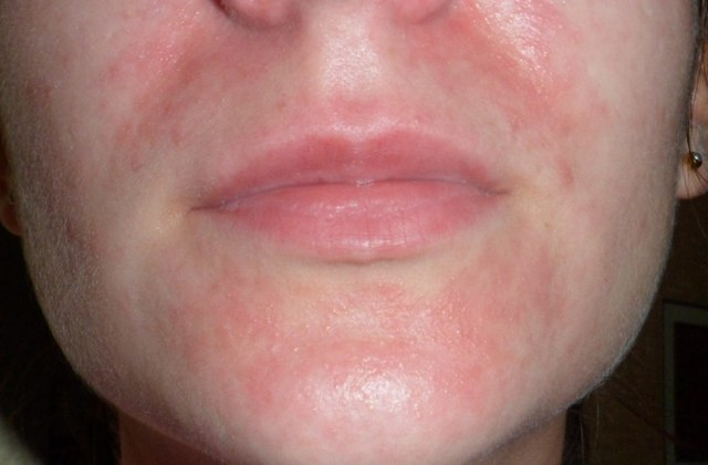 Можно ли посещать солярий при атопическом дерматите?