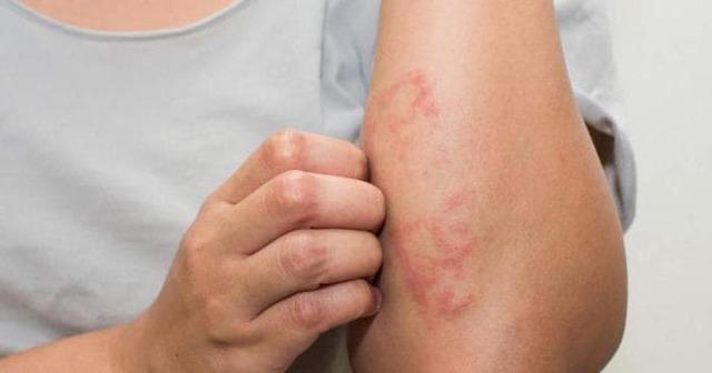 Аллергический дерматит этиология патогенез клиника лечение