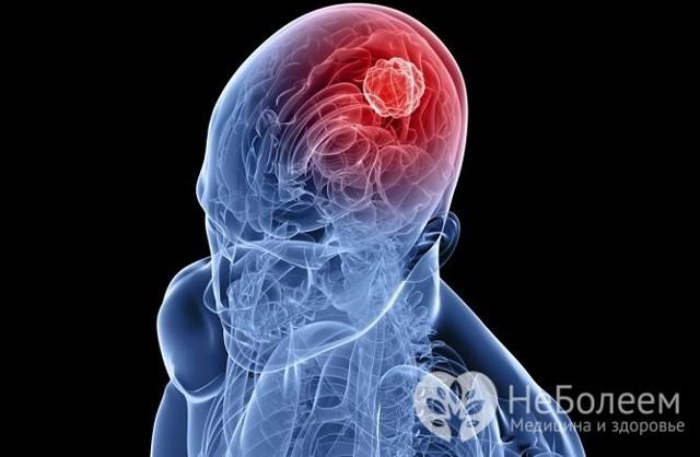 Повышенное внутричерепное давление симптомы у взрослых симптомы и лечение