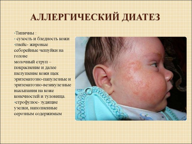 Диатез и атопический дерматит это одно и тоже или нет