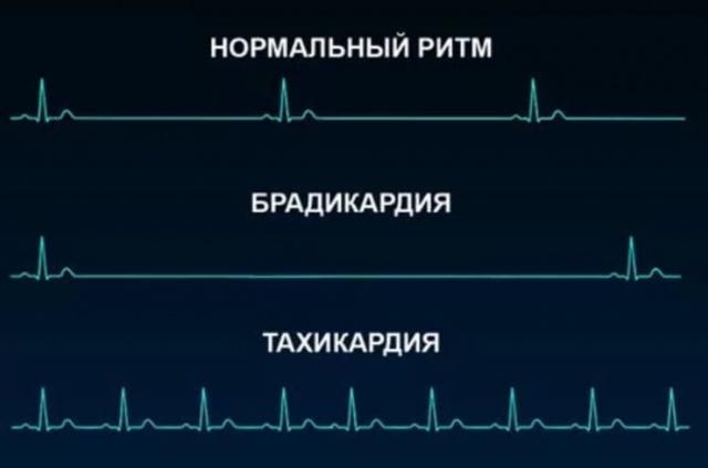 Как повысить частоту пульса у пожилого человека с повышенным давлением?