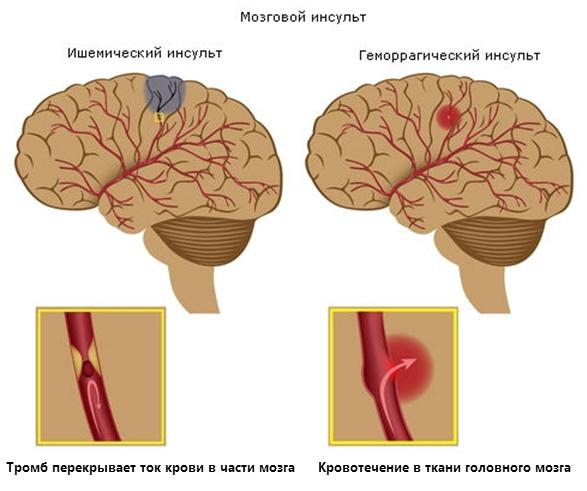 Причины и симптомы инсульта