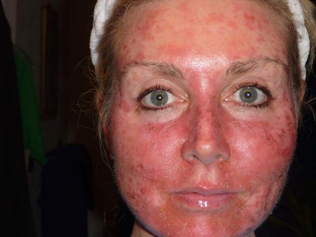 Можно ли находится на солнце при дерматите?