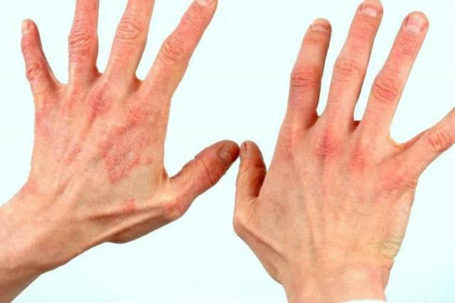 Как убрать пятна на теле после аллергического дерматита?