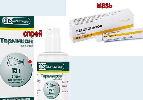 Чем отличается отрубевидный лишай от себорейного дерматита