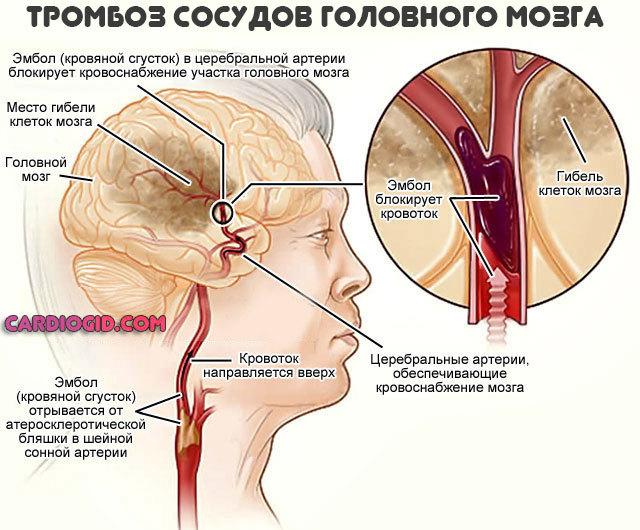 Повышенное давление и пульс что делать в домашних условиях