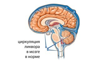 Как избавиться от головной боли при повышенном внутричерепном давлении?