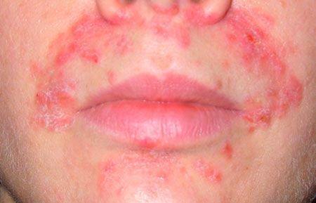 Дерматит вокруг рта у взрослого причины лечение
