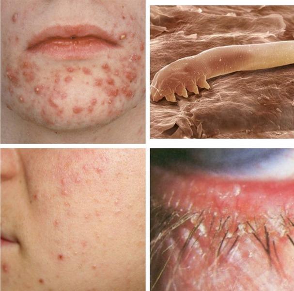 Клещевые дерматиты у человека не проявляются в результате