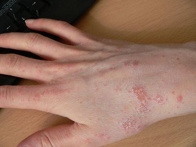 Как вылечить народными средствами дерматит на руках?