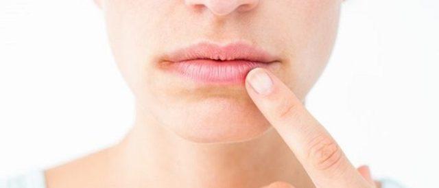 Как отличить грибок на коже от дерматита?