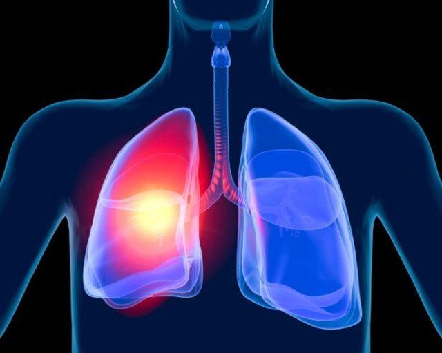 Сильный кашель не проходит неделю