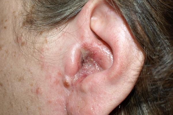 Дерматит ушной раковины лечение у людей лекарства