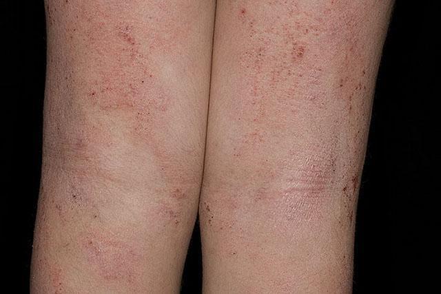 Покраснение на коже и зуд атопический дерматит