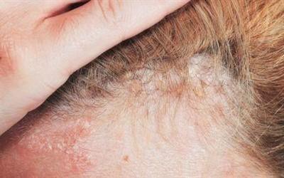 Диета при себорейном дерматите на голове на каждый день