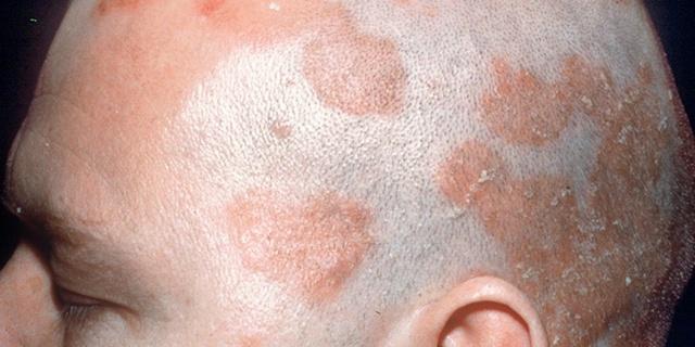 Как избавиться от кожного дерматита на голове?