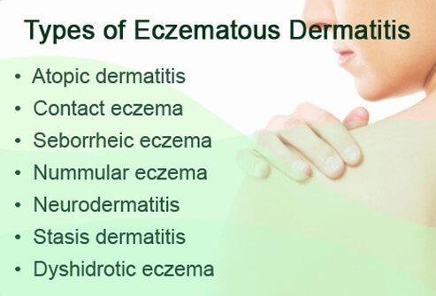 Субъективный симптом характерный для экземы и атопического дерматита