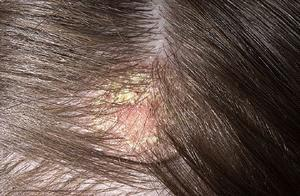 Как лечить березовым дегтем себорейный дерматит?
