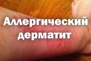 Аллергический дерматит как лечить в домашних условиях