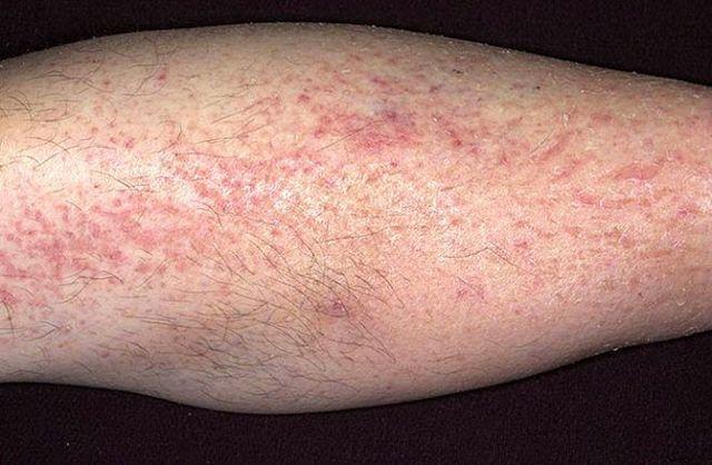 Как лечить контактный дерматит на ногах?