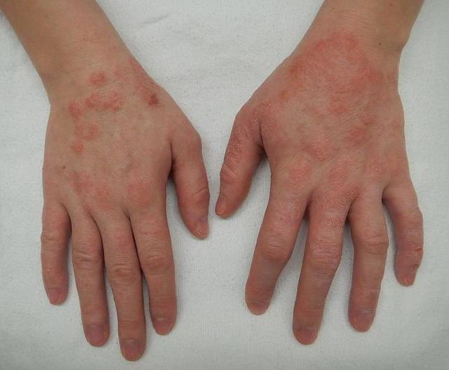 Может ли атопический дерматит перейти в экзему