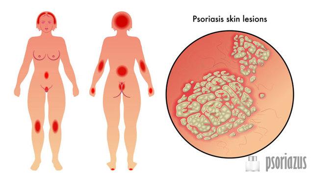 Псориаз или себорейный дерматит на голове у взрослого отличия