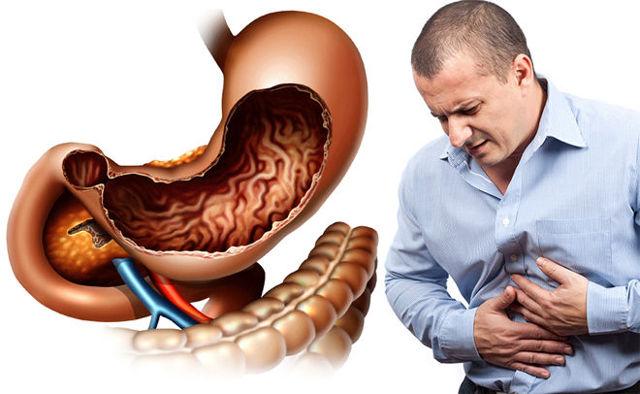 При кашле болят мышцы живота