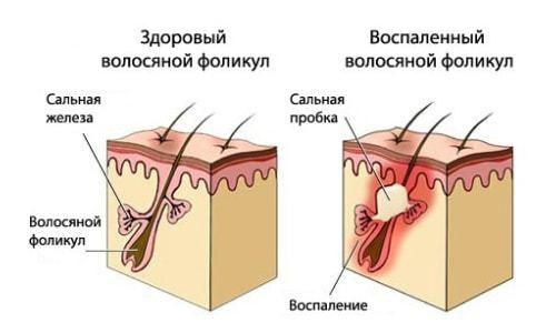Можно ли при себорейном дерматите пить дрожжи?