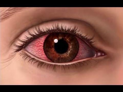 Чем отличается простой контактный дерматит от аллергического