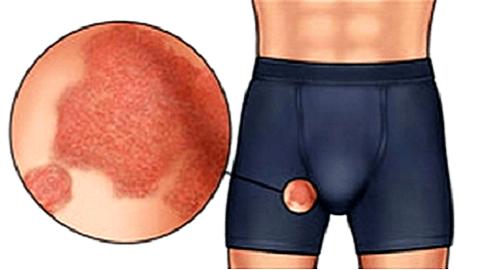 Паховый дерматит у мужчин лечение народными средствами