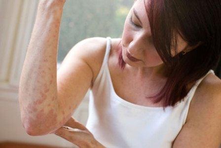 Может ли быть дисбактериоз причиной атопического дерматита