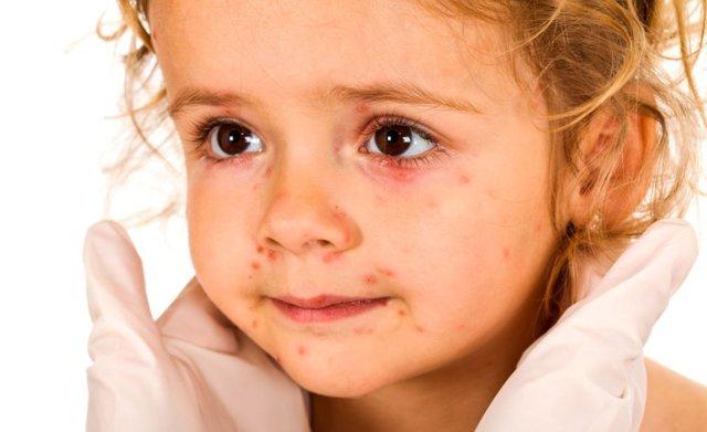 Крапивница и кашель у ребенка