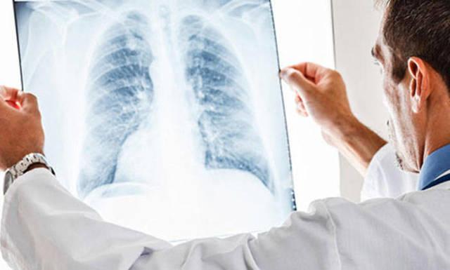В чем заключается опасность рентгена