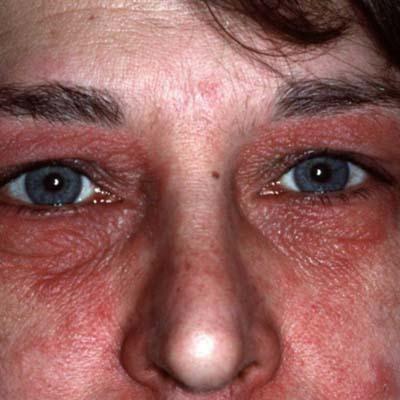 Как лечить себорейный дерматит на бровях?