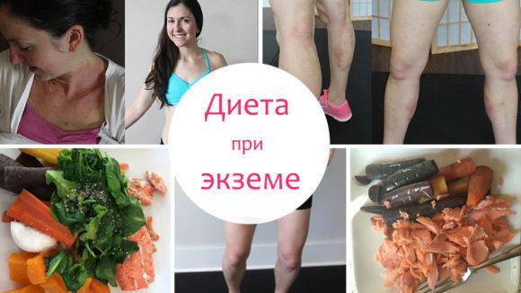 Варикозный дерматит нижних конечностей лечение мази и таблетки