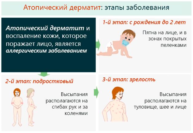 Атопический дерматит у детей психологические причины возникновения