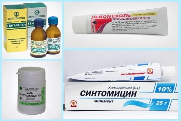 Аллергический дерматит в паху у женщин