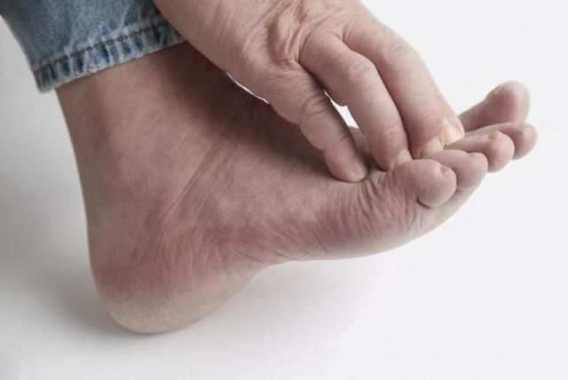Как вылечить дерматит на ногах в домашних условиях быстро?