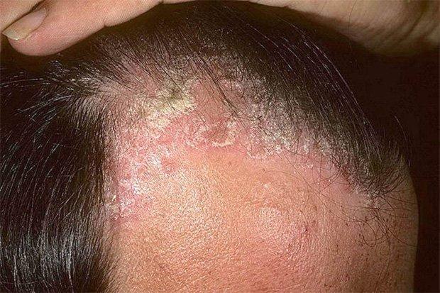 Как отличить псориаз на голове от себорейного дерматита на голове?