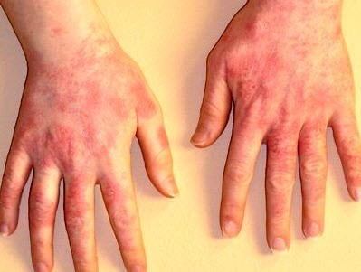 Как восстановить кожу рук после экземы и дерматита?