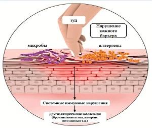Как пользоваться цинковой мазью при дерматите?