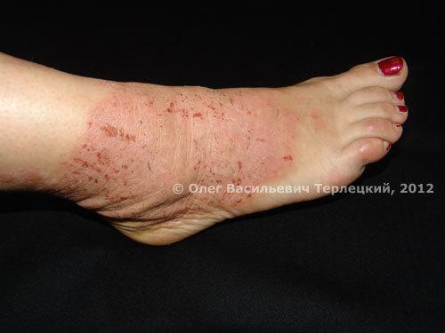 Дифференциальный диагноз псориаза с атопическим дерматитом