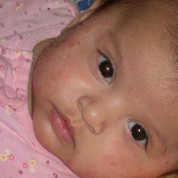 Легкая форма атопического дерматита у детей