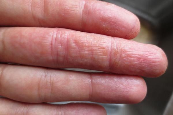 Характерные признаки появления дисгидроза рук