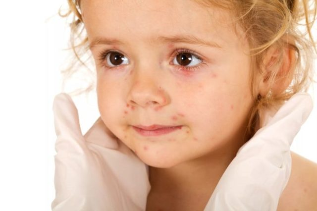 Кашель у ребенка осипший голос