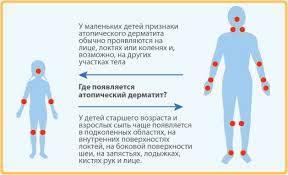 Как очистить кишечник при атопическом дерматите от аллергенов ребенку?